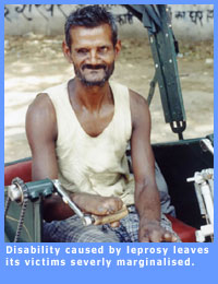Picture of disabled leprosy patient